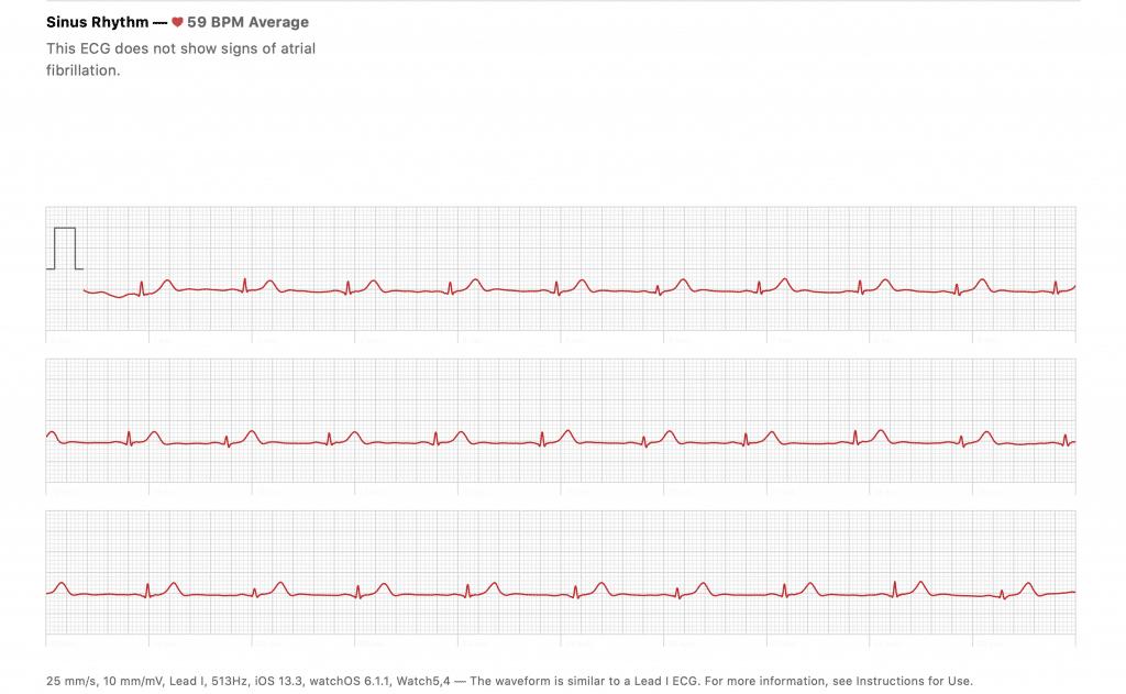 Apple watch ECG result