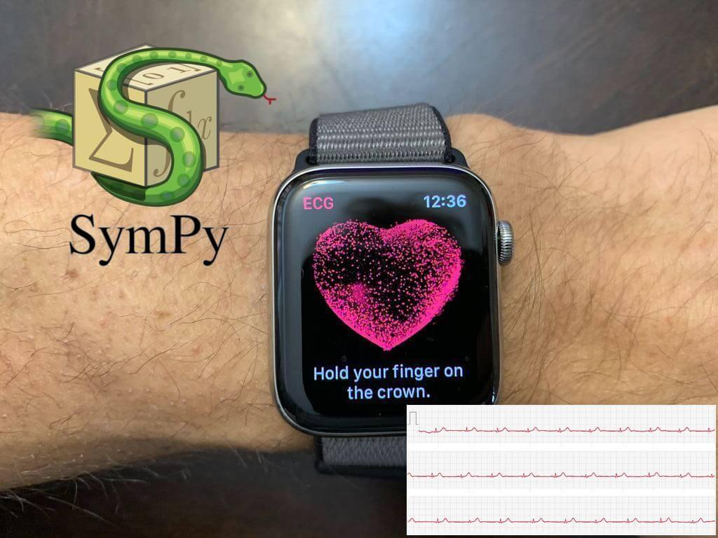 Using SymPy to Build ECG Model