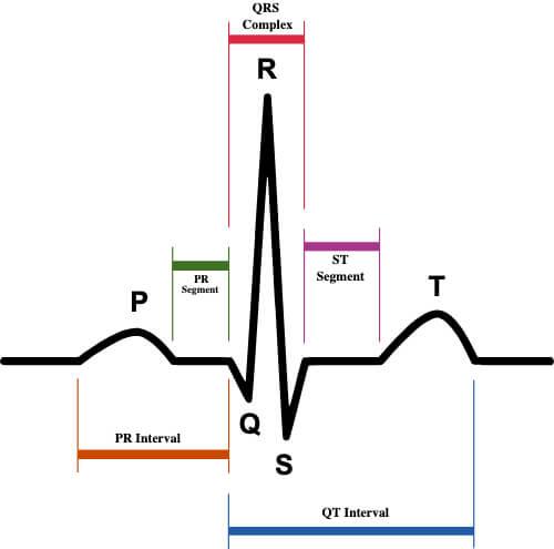 ECG waveform with segments