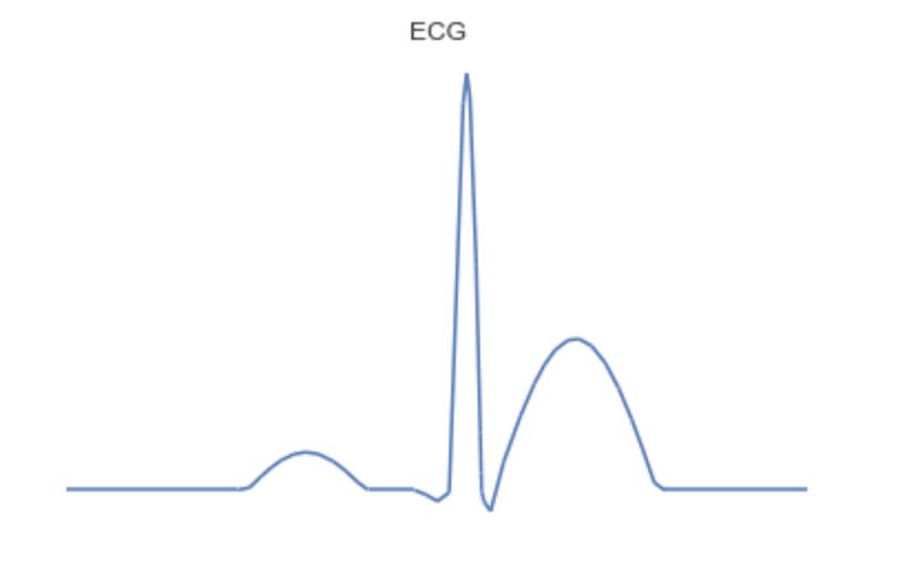 TC ECG model waveform